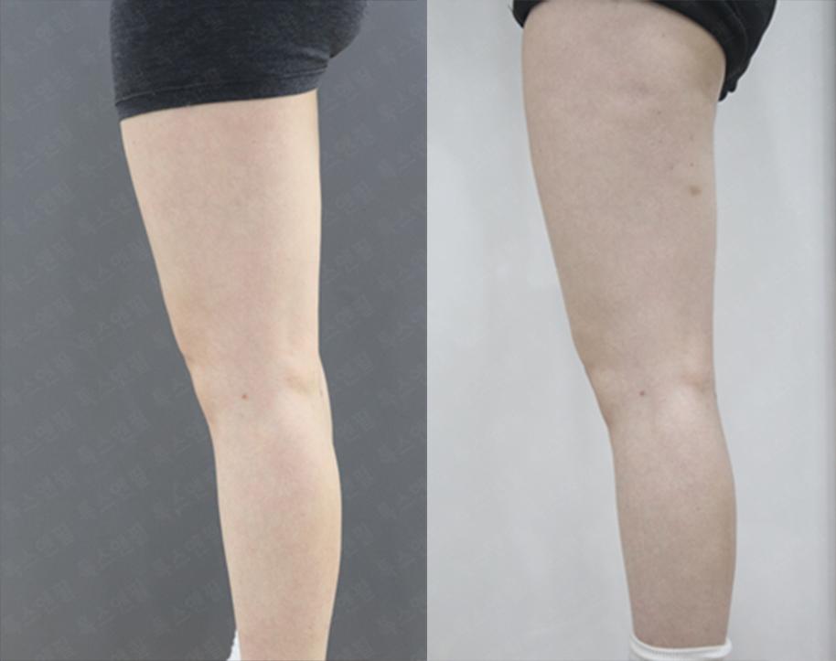 걸그룹주사(허벅지) 시술전후