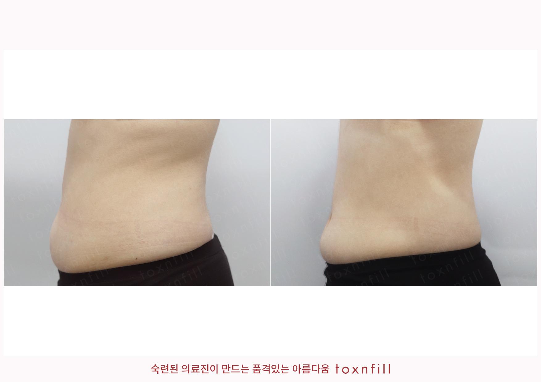 복부 톡팻주사 시술전후