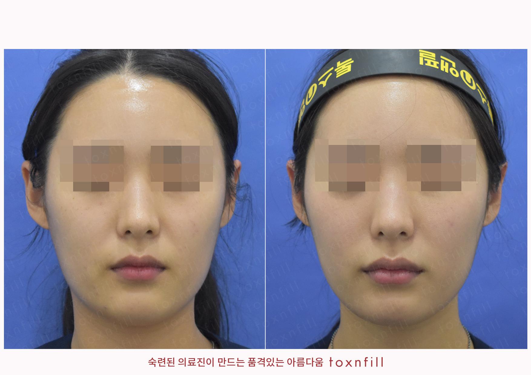 미백레이저+입술,턱끝필러 시술전후