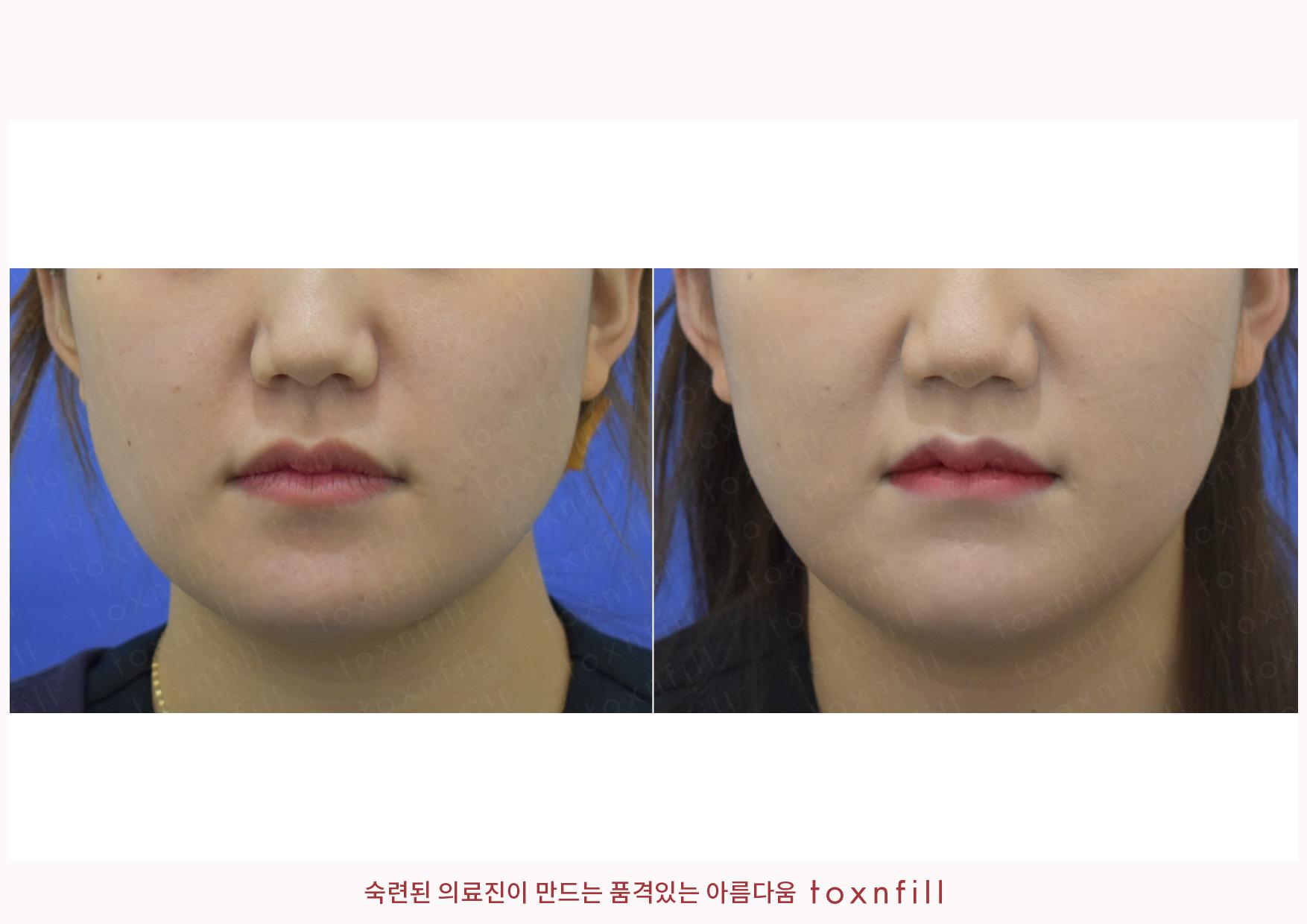 조각주사+슈링크+코필러 시술전후