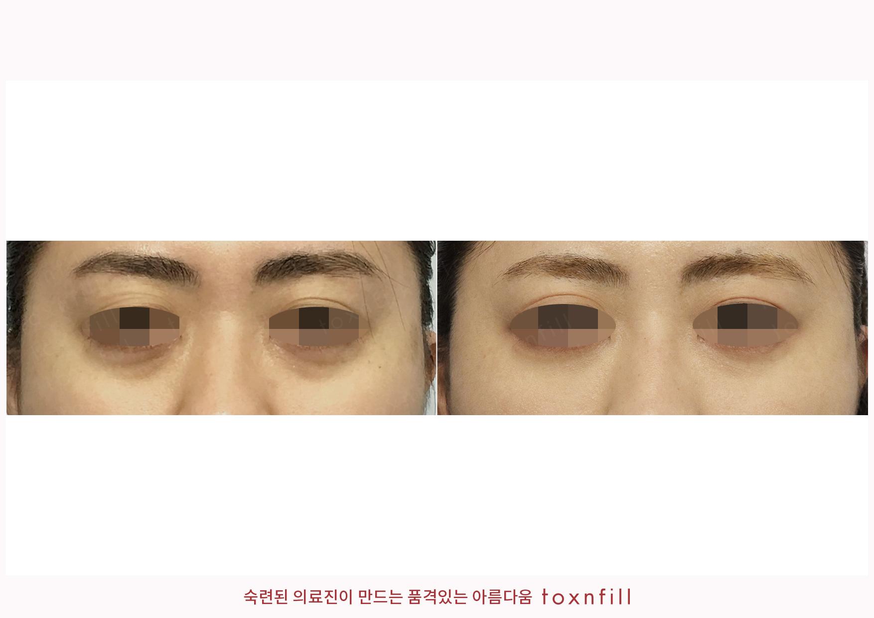 눈밑교정+눈밑,눈두덩이필러 시술전후