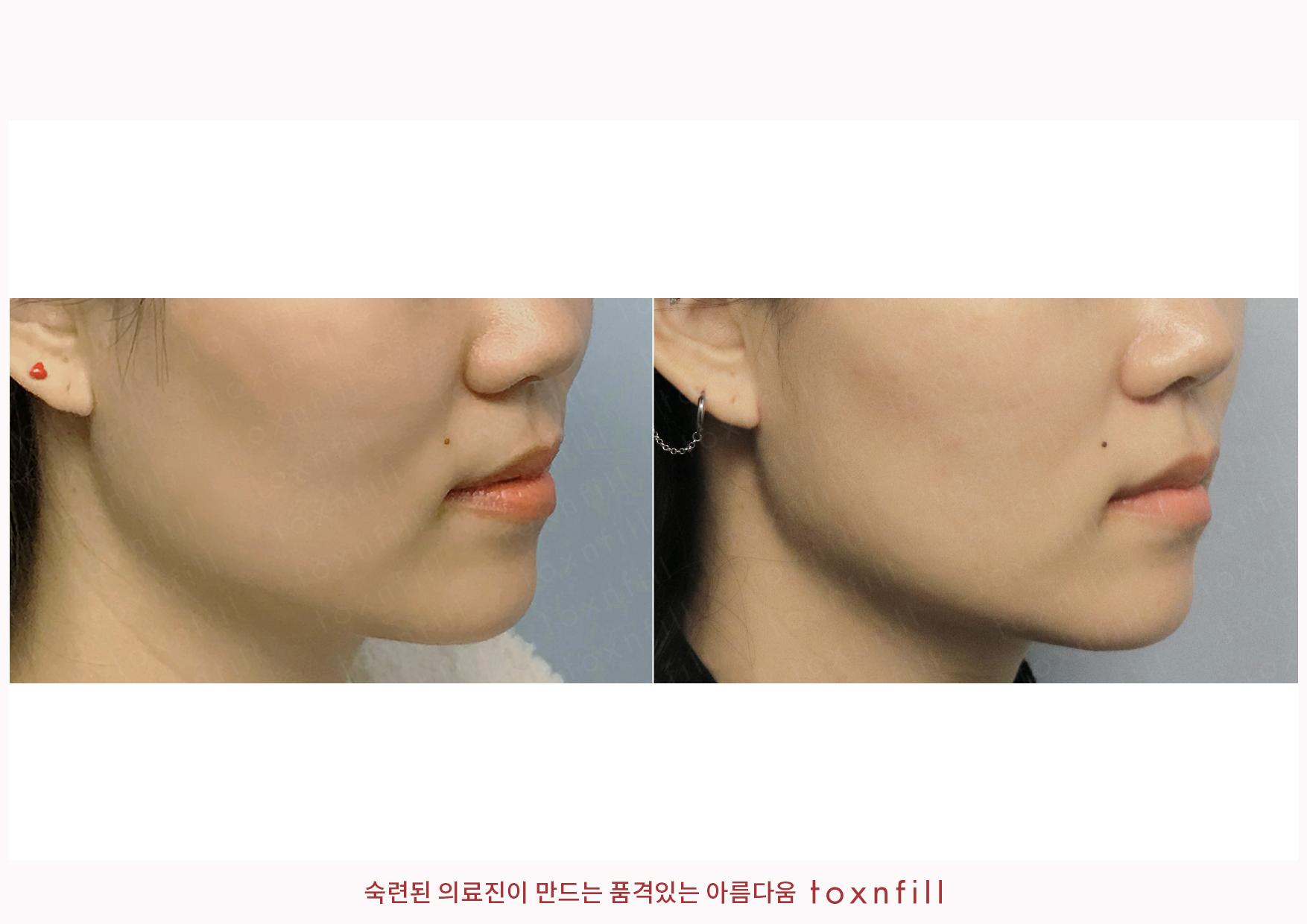 볼실리프팅+턱라인조각주사 시술전후