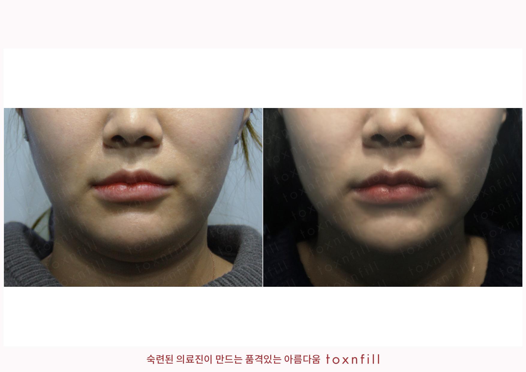 시술전후_김민정_슈링크+조각주사_작업파일_정면(2).jpg