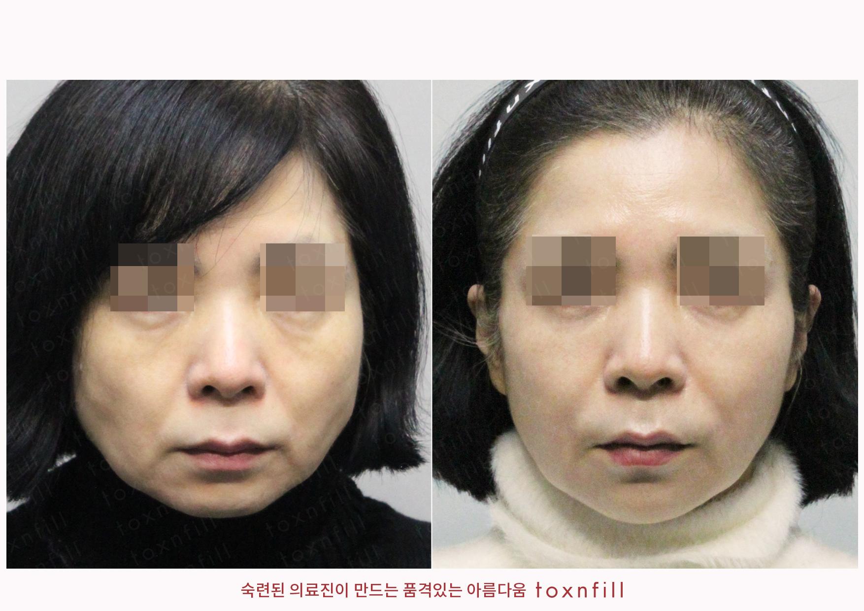 인모드+슈링크+풀페이스더모톡신+조각주사+마리오네트,입술,턱끝필러 시술전후