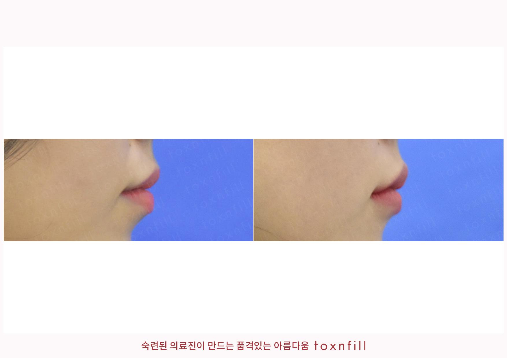 입술필러 시술전후