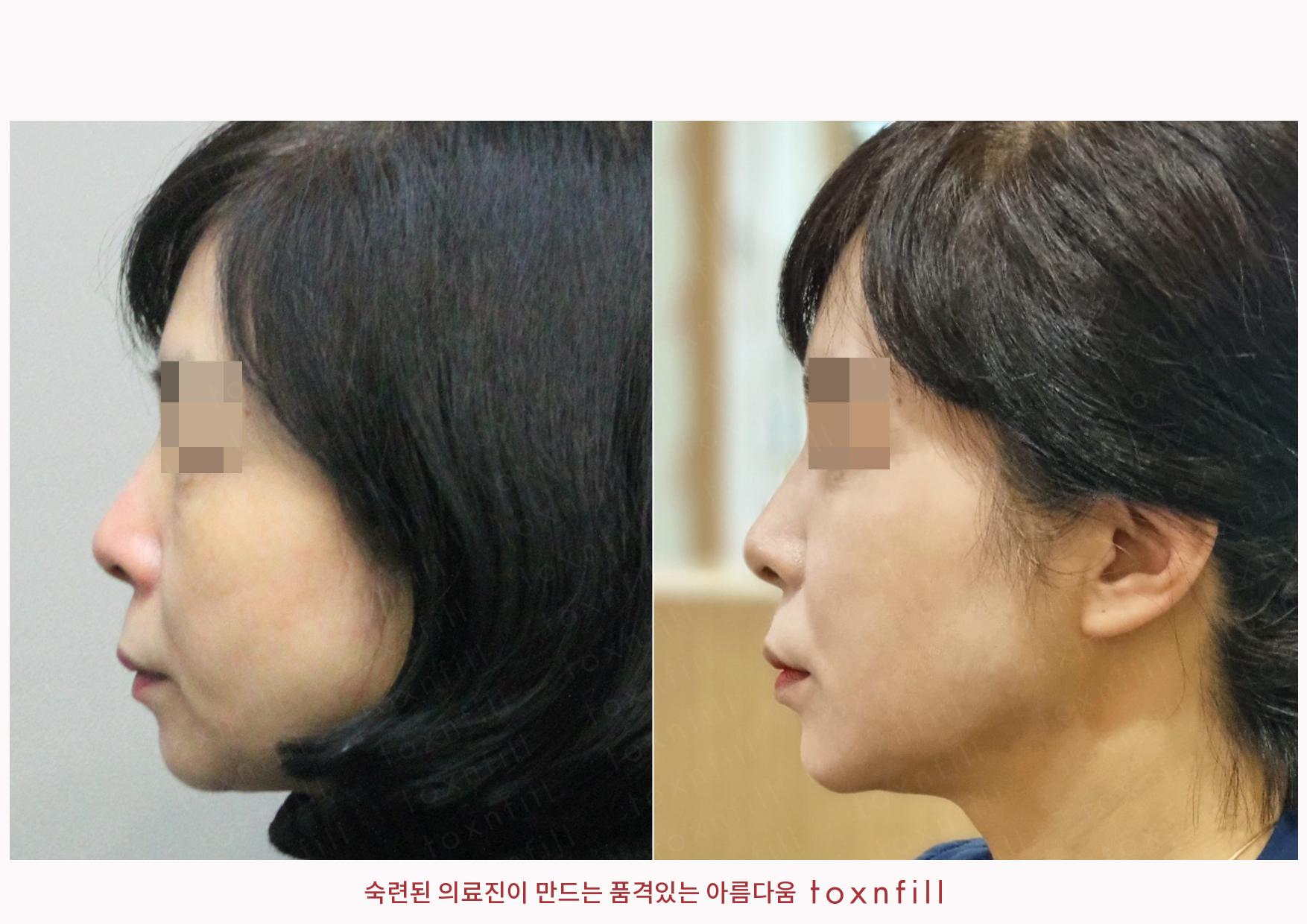 얼굴전체보톡스+볼라이트+턱끝,턱라인필러 시술전후