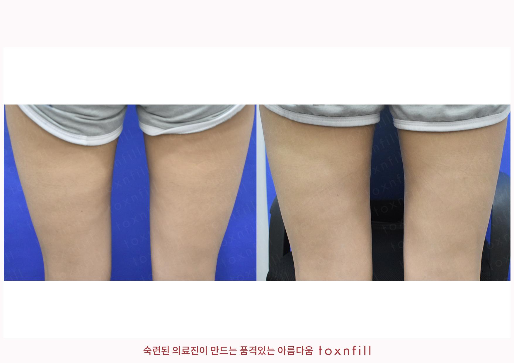 허벅지제모 시술전후