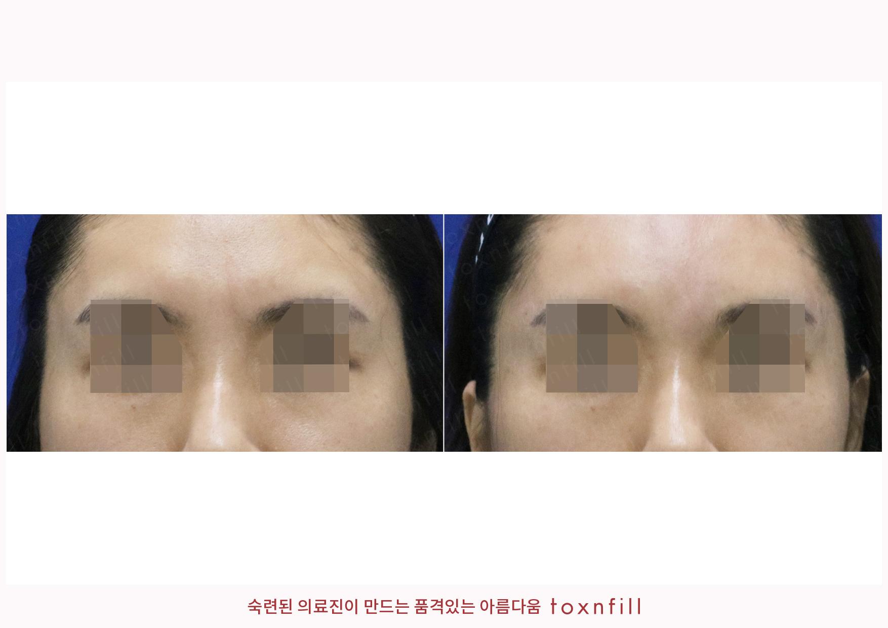 주름(바깥눈가,미간)보톡스 시술전후
