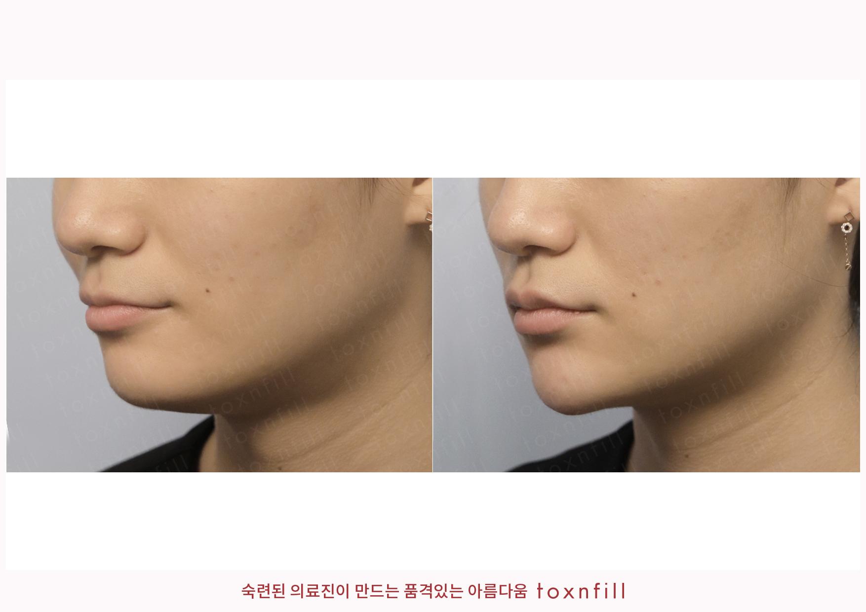 턱끝필러(페이스필러수입) 시술전후