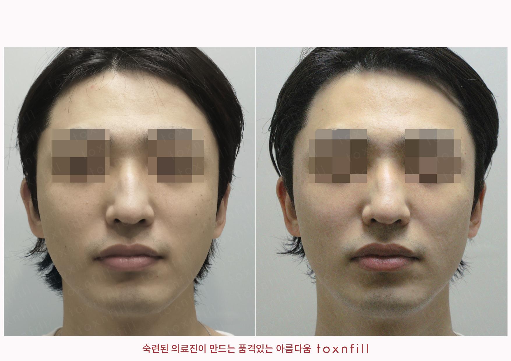 올인원(피부) 시술전후