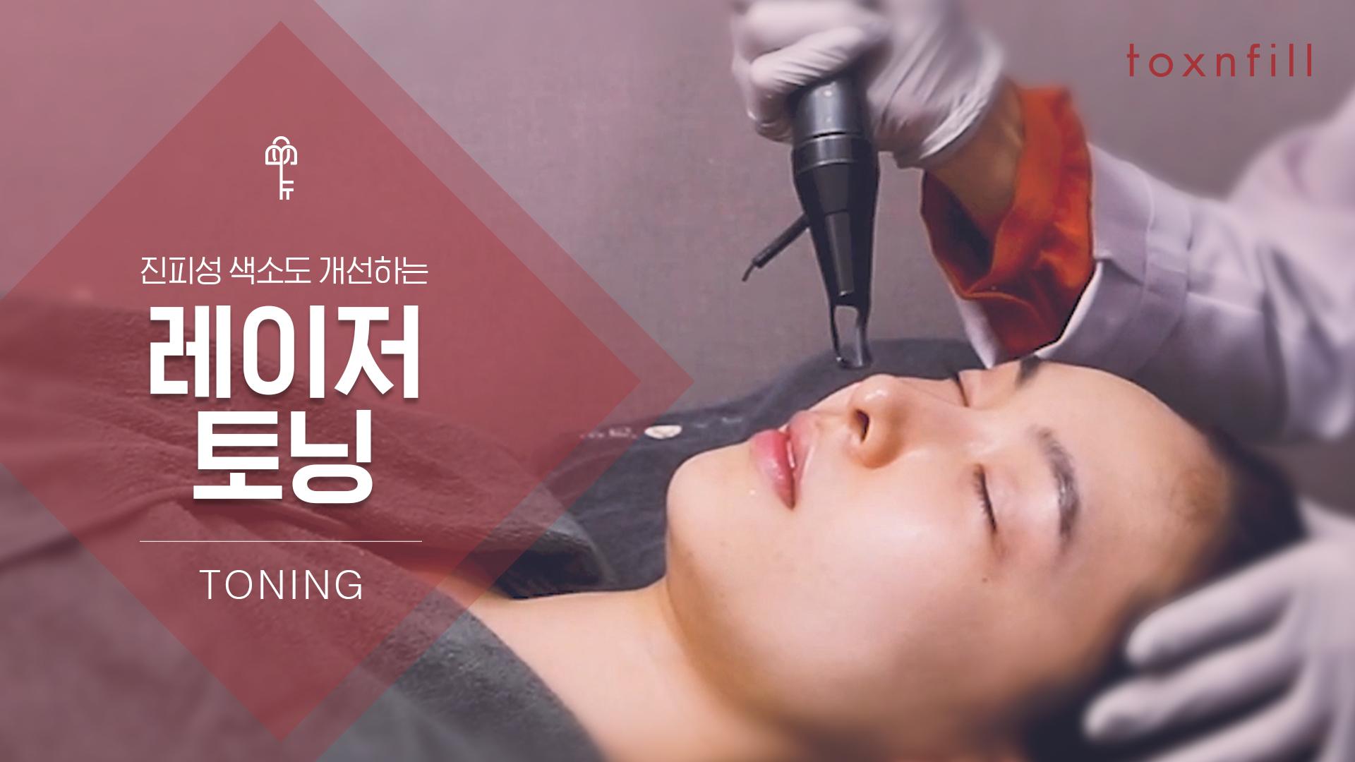 레이저토닝 10회+코레지글러브+도자 5회